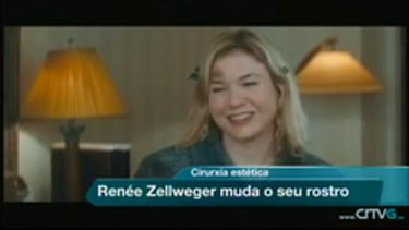 Opinión del doctor Barros sobre el cambio físico de Renée Zellweger